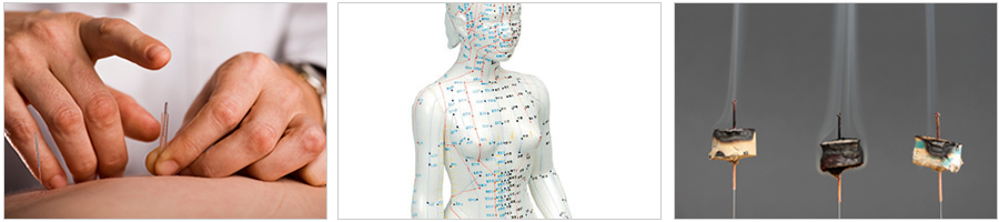 Acupuncture for Adults
