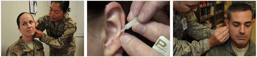 Battlefield Acupuncture